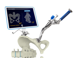 Computer Assisted Hip Replacement