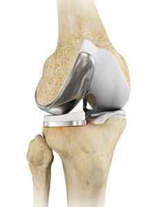 Partial Lateral Knee Replacement